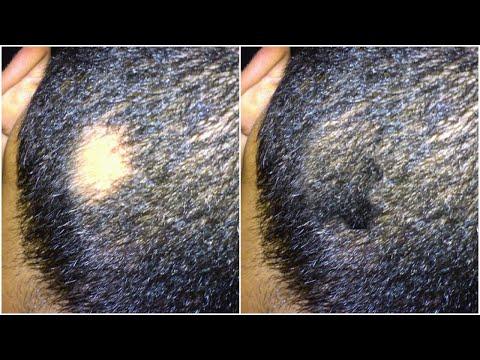 5 Solutions Pour Alopécie Areata 🙈- Pousse Des Cheveux Naturels Crépus😘
