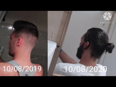 1 Year Hair Growth journey from a skin fade – Timelaps – Pousse de cheveux homme