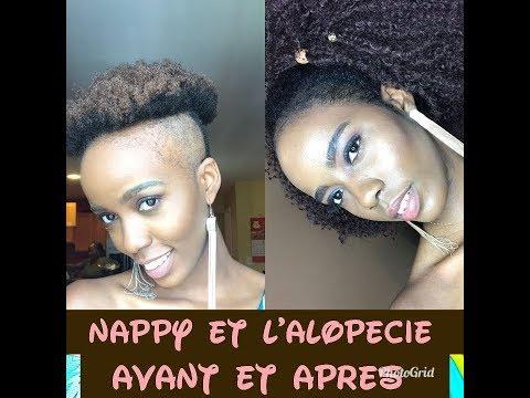 Nappy et L'alopecie, comment cacher et coiffer  ses cheveux part 1