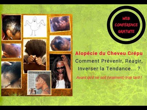 Masterclass Alopécie Cheveu Crépu, frisé, bouclé : Prévenir, Réagir, Inverser la Tendance…