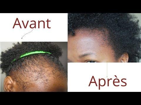Alopécie – Solution Pour Faire Pousser Les TEMPES Dégarnis – Vraies Photos, Demonstration & Produits