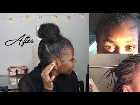 Fini les trous dans les cheveux | Alopécie ?