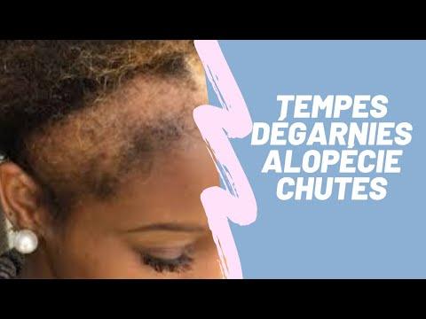 CHEVEUX CRÉPUS:L'ALOPÉCIE
