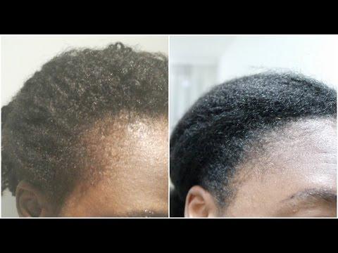Faire pousser ses cheveux des tempes: 1 an après, huiles et massages