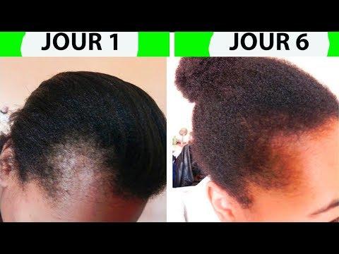 Faire pousser les cheveux des tempes rapidement et sans effort
