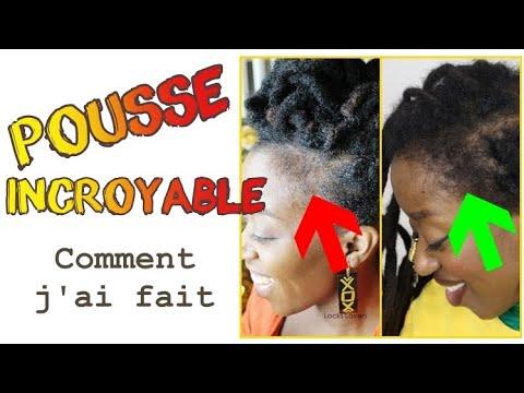 Tempes: Comment j'ai fait repousser mes cheveux des TEMPES ! Méthode 100% naturelle #alopecie#pousse
