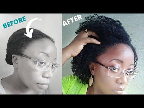 Comment J'ai Fait Repousser Mes Cheveux Des Tempes En Moins de 60 Jours – 04 ASTUCES 100% naturelles