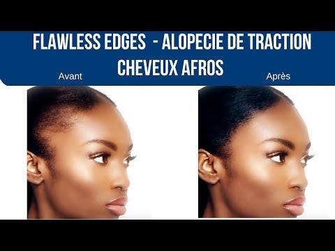 Solution tempes dégarnies EDGES – Alopécie de Traction – Cheveux Afros