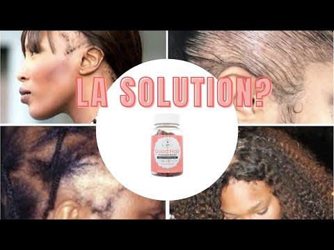 😱 PROBLEME DE CHUTE DE CHEVEUX, ALOPECIE, PERTE DE VOLUME JE TEST LASHILE BEAUTY ⎜MAKEACHDAYCOUNT