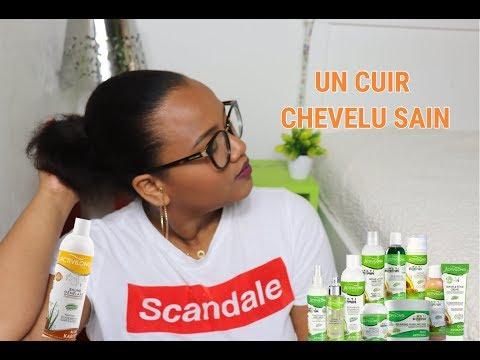 COMMENT J'AI RETROUVÉ UN CUIR CHEVELU SAIN ? | SO MEGANE
