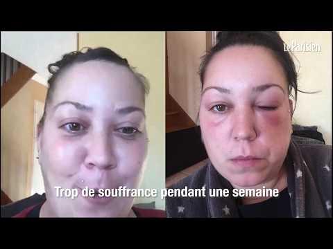 Allergie aux colorations capillaires : « Ça m'a brûlé tout le cuir chevelu »