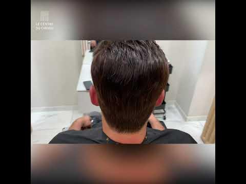 Chute de cheveux – Le Centre du Cheveu