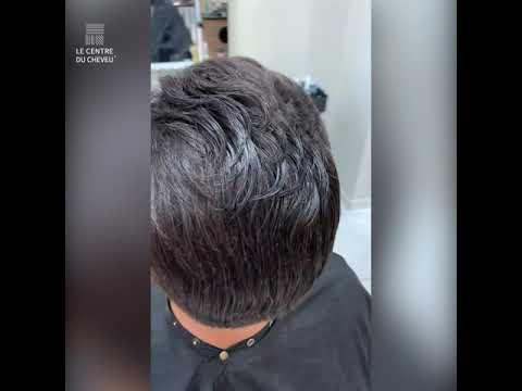 Chute de cheveu – Le Centre du Cheveu