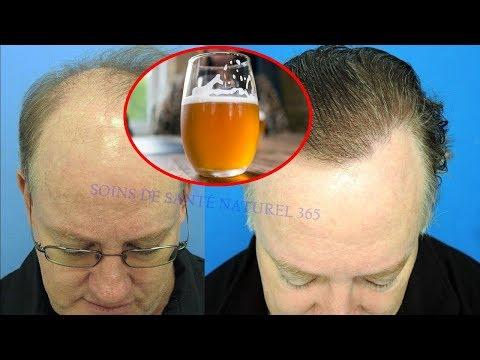 Verser De La Bière Dans Les Cheveux Pour Traitement Naturel De La Calvitie & Chute Des Cheveux