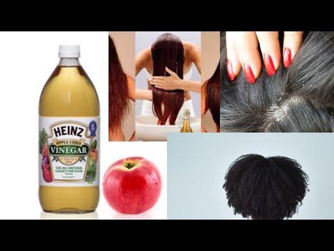 Vinaigre de cidre ,très bon pour les cheveux/خلطة بخل التفاح 🍎لشعر المتساقط،خلطة رائعة جدا وفعلية👌