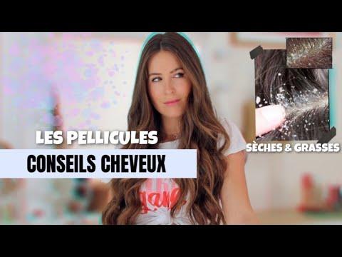 ADIEU PELLICULES Sèches et Grasses 👋🏼 | CONSEILS CHEVEUX