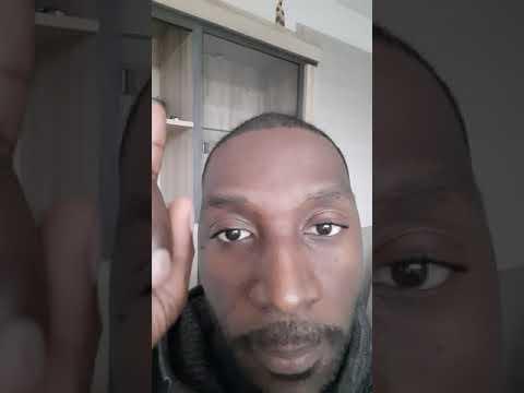 Greffe de cheveux afro / 4 Mois et 1 semaine
