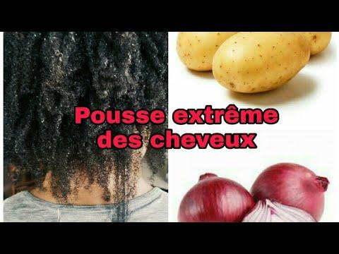 Pousse extrême des cheveux avec la pomme de terre et l'oignon🤤✌️😍😍😍