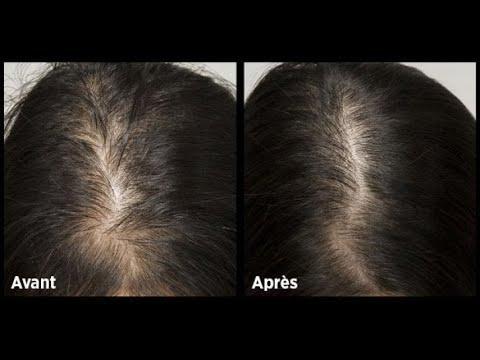 Elle avait des cheveux fins et a utilisé ces techniques pour les épaissir en quelques semaines