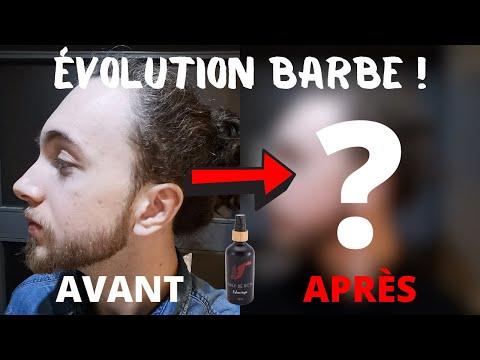 """🧔 ÉVOLUTION BARBE AVANT/APRÈS : cure de 3 mois d'huile de ricin ! (""""Meynamena"""") 🧔"""