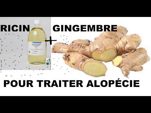 Comment bien utiliser le gingembre et l'huile de ricin pour faire pousser vos cheveux + alopécie