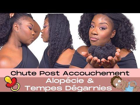 Alopécie des cheveux du devant – Chute post accouchement