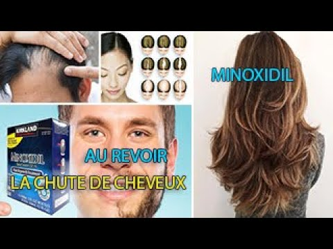 Le MINOXIDIL : contre la chute de cheveux