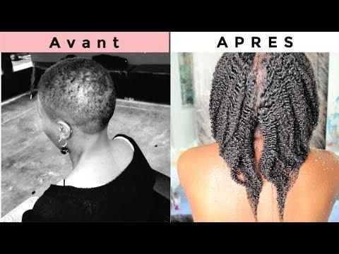 Les VITAMINES Pour La Pousse Des Cheveux Naturels Crépus – Suppléments Alimentaires Des Cheveux