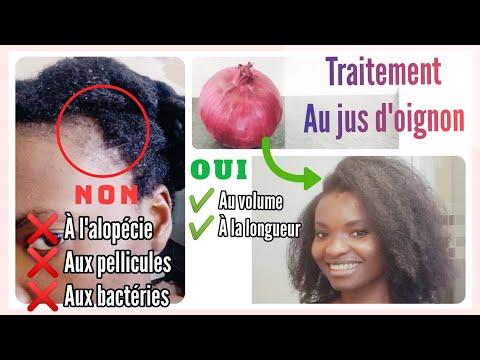🇨🇮30. Jus d'oignon – POUSSE EXTRÊME + Volume – ALOPÉCIE – Kinky Hair Beauties