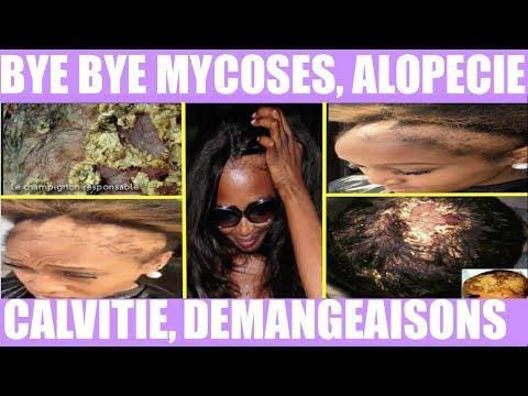 Recette MIRACLE! Mycoses, Calvitie, DÉMANGEAISONS cuir chevelu, Alopécie, Chute cheveux naturels