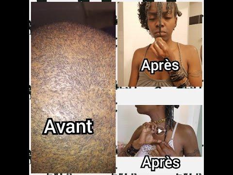 Comment avoir une pousse maximale : cheveux afro tous types