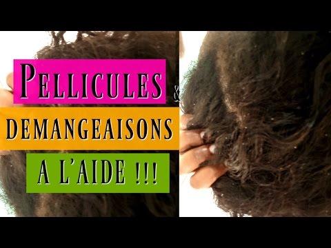 J'ai des pellicules et démangeaisons- Aidez -moi :/ Cheveux Frisés…