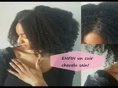 Pellicules & démangeaisons.. Les trucs qui marchent VRAIMENT – Cheveux crépus, très secs