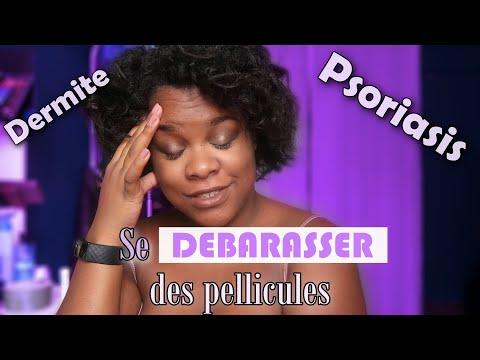 COMMENT SE DÉBARRASSER DES PELLICULES   Psoriasis   Dermite Séborrhéique   Cheveux crépus – frisés