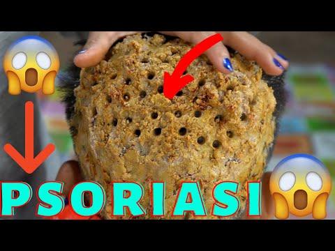 Gratter le psoriasis sur le cuir chevelu # 02 !!! Élimination des gros flocons de pellicules vraimen