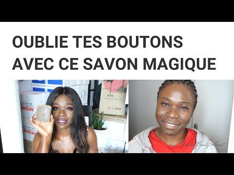 LE MEILLEUR SAVON CONTRE LES BOUTONS!!! // CITRON, LAVANDE,HUILE DE PALMISTE NOIRE,CLOUS DE GIROFLE