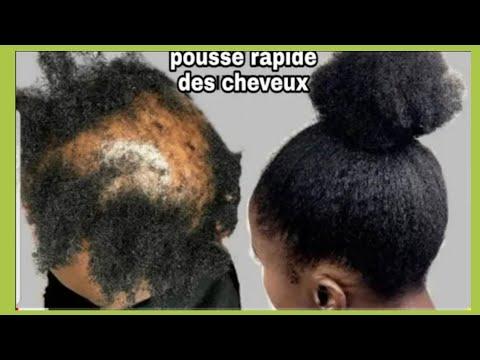 Ma SOEUR N'AVAIS PLUS DE CHEVEUX,c'est grâce à Ce Sérum Capillaire Croissance cheveux et Masque mayo